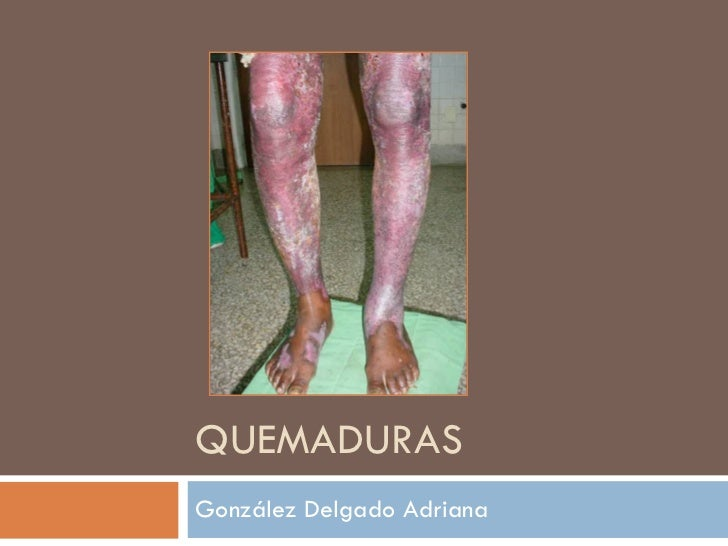 QUEMADURAS González Delgado Adriana