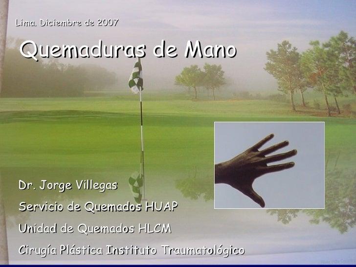 Lima. Diciembre de 2007   Quemaduras de Mano     Dr. Jorge Villegas Servicio de Quemados HUAP Unidad de Quemados HLCM Ciru...