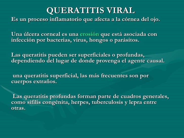 QUERATITIS VIRAL Es un proceso inflamatorio que afecta a la córnea del ojo. Una úlcera corneal es una  erosión  que está a...
