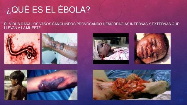 ¿QUÉ ES EL ÉBOLA?  EL VIRUS DAÑA LOS VASOS SANGUÍNEOS PROVOCANDO HEMORRAGIAS INTERNAS Y EXTERNAS QUE  LLEVAN A LA MUERTE.