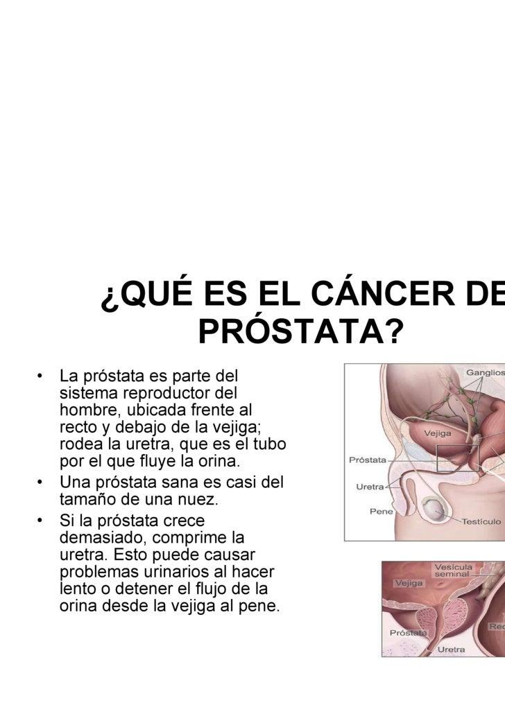 ¿QUÉ ES EL CÁNCER DE PRÓSTATA?   <ul><li>La próstata es parte del sistema reproductor del hombre, ubicada frente al recto ...