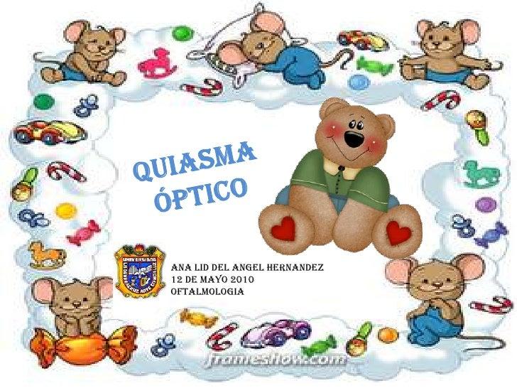 QUIASMA ÓPTICO<br />ANA LID DEL ANGEL HERNANDEZ<br />12 DE MAYO 2010<br />OFTALMOLOGIA<br />