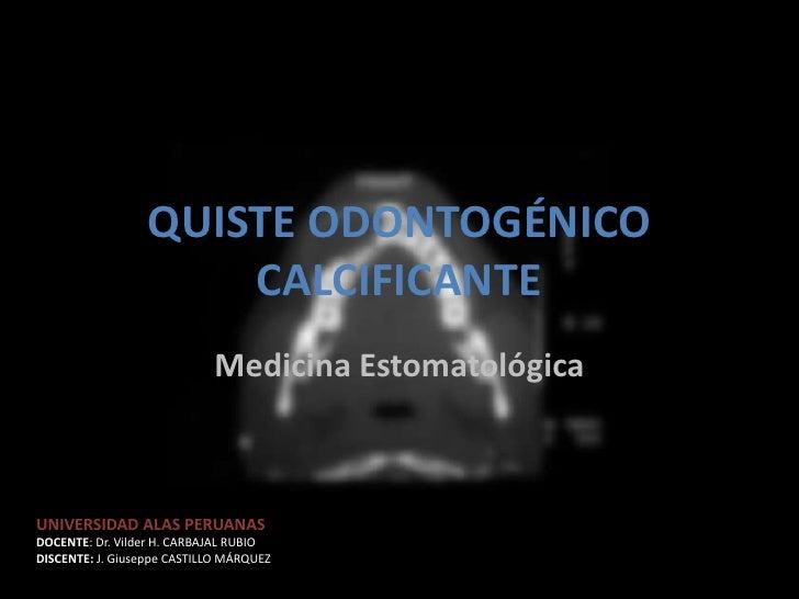 QUISTE ODONTOGÉNICO                      CALCIFICANTE                            Medicina EstomatológicaUNIVERSIDAD ALAS P...