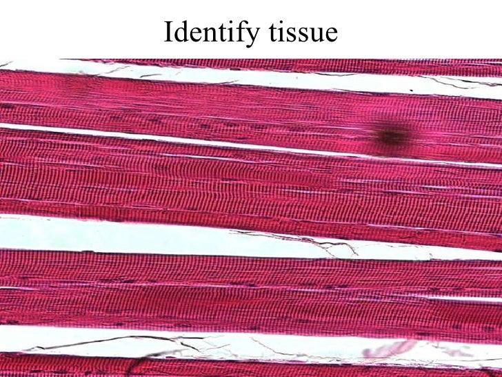 Identify tissue