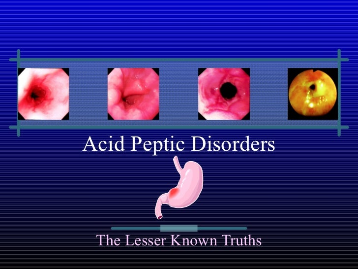 Acid Peptic Disorders The Lesser Known Truths