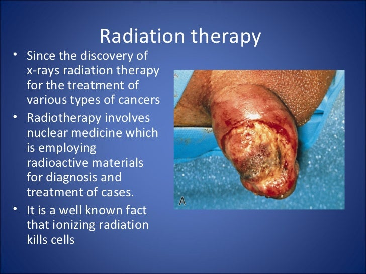 Radiation therapy• Since the discovery of  x-rays radiation therapy  for the treatment of  various types of cancers• Radio...