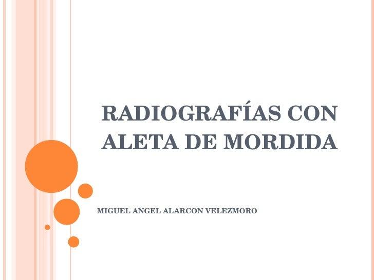 RADIOGRAFÍAS CON ALETA DE MORDIDA MIGUEL ANGEL ALARCON VELEZMORO