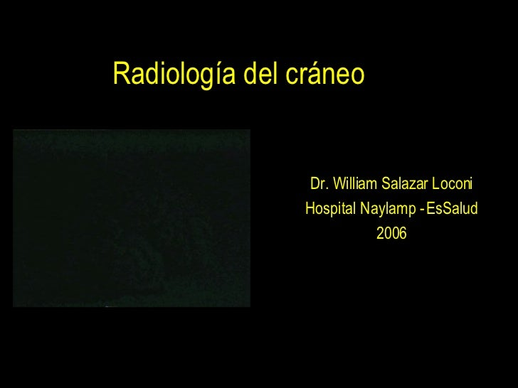 Radiología del cráneo Dr. William Salazar Loconi Hospital Naylamp - EsSalud 2006