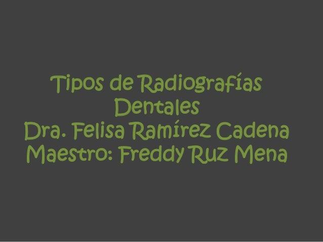 Tipos de Radiografías Dentales Dra. Felisa Ramírez Cadena Maestro: Freddy Ruz Mena