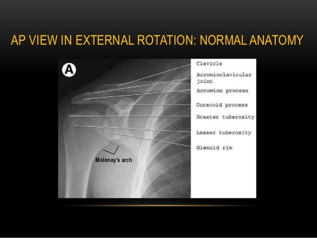 4225153 likewise 331647960037776749 additionally 100472 Humerus X Ray likewise 1005871 further External And Internal Rotation Views Of The Shoulder. on clavicle x ray positioning