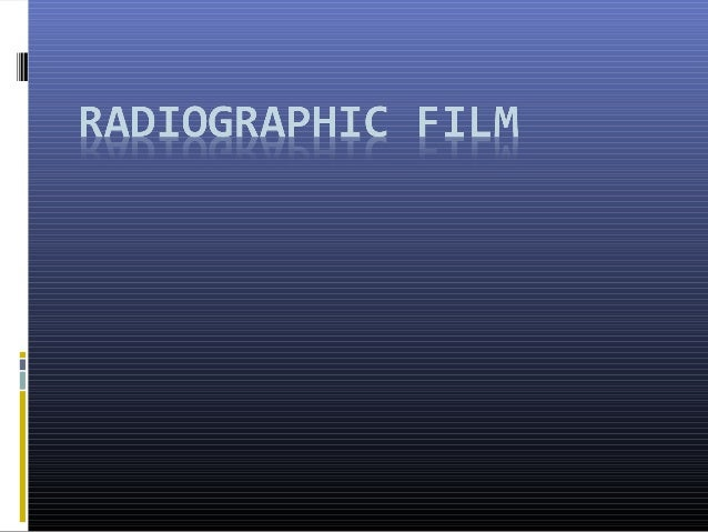 History  By the time x-rays were discovered, photography was already an art.  Photographic film with a nitrocellulose ba...