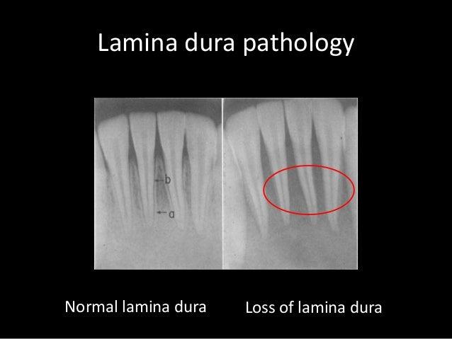 39 Lamina dura Lamina ...