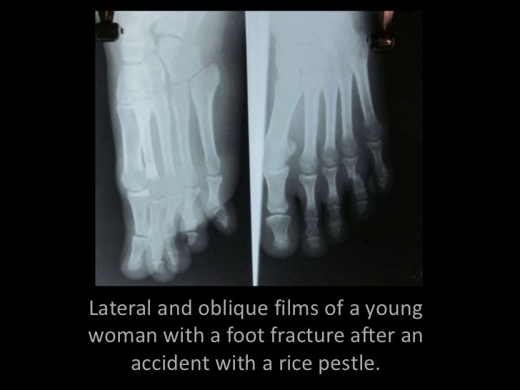 Lateral and oblique films of a youngwoman with a foot fracture after an    accident with a rice pestle.