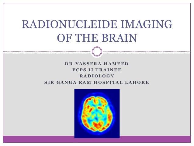 Radionucleide imaging of the brain