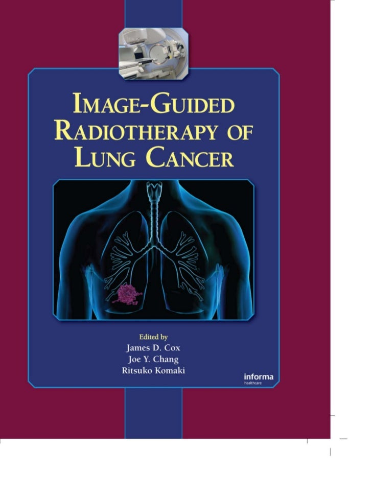 Image-guIdedRadIotheRapy of Lung CanCeR