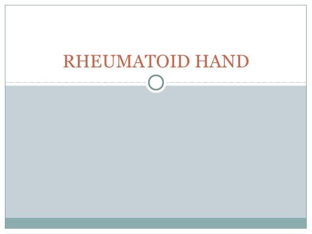 Ra hand