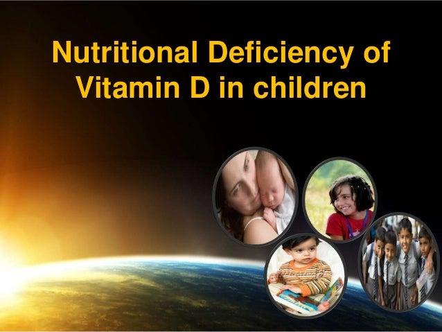 Nutritional Deficiency of Vitamin D in children