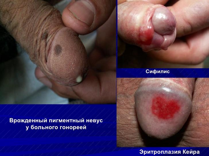 Эритроплазия фото