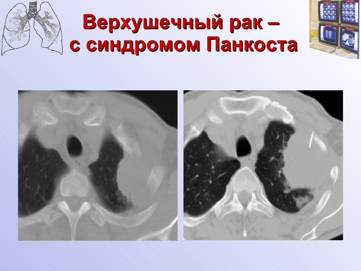 Синдром Пэнкоста