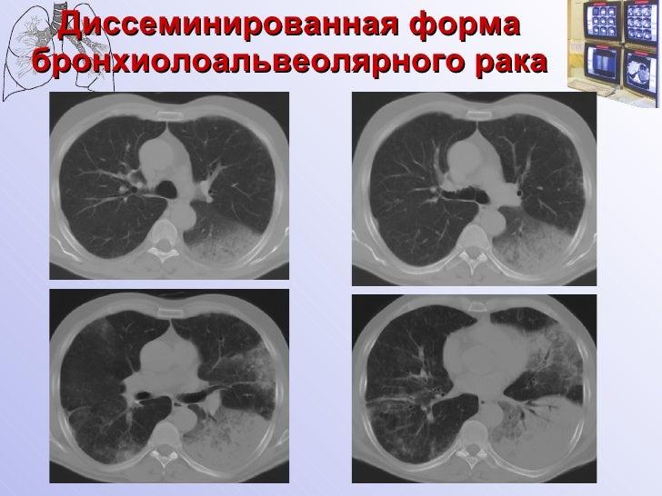 Бронхиолоальвеолярный рак