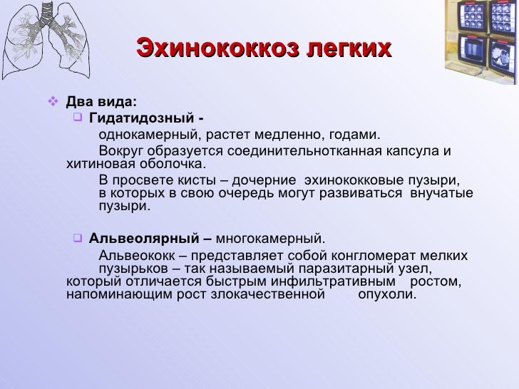 Эхинококкоз Однокамерный фото