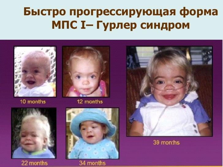 Синдром Ди Георга