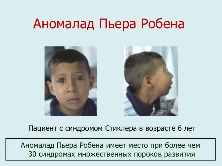 Синдром Пьера Робена