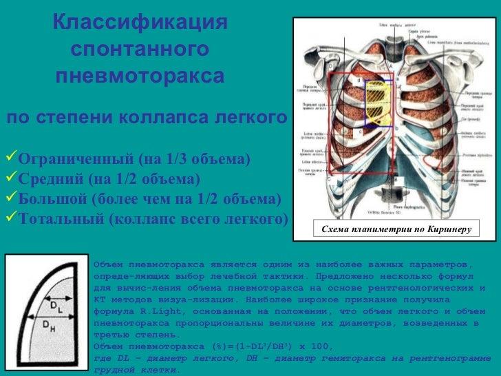 Пневмоторакс спонтанный