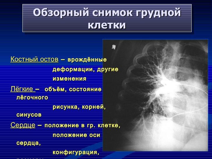 Лимфангиография фото