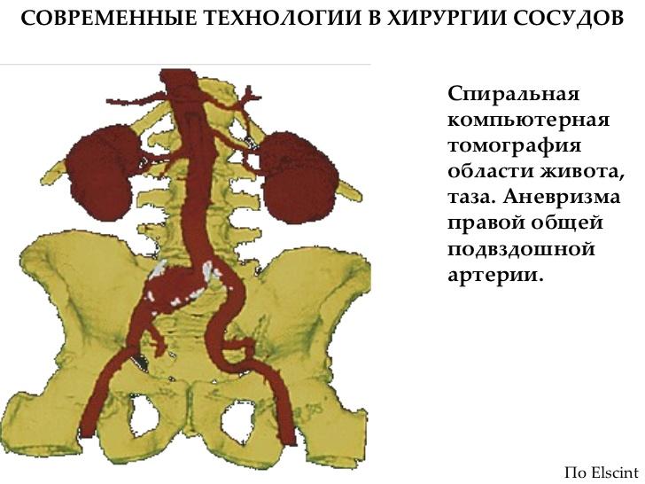 Пластика Глубокой Артерии Бедра фото
