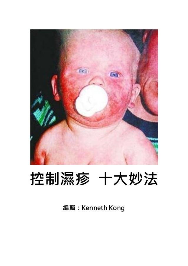 控制濕疹 十大妙法  編輯:Kenneth Kong