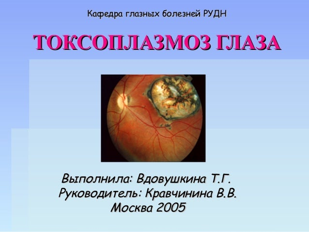 Кафедра глазных болезней
