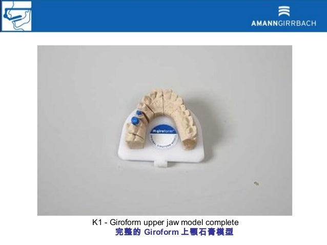 K1 - Giroform upper jaw model complete      完整的 Giroform 上顎石膏模型