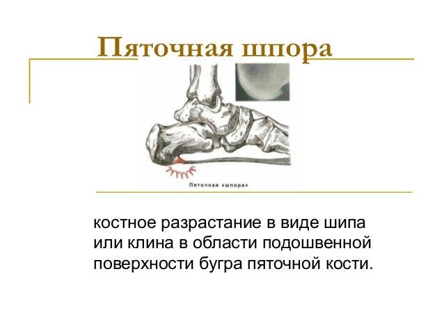 Пяточная шпоракостное разрастание в виде шипаили клина в области подошвеннойповерхности бугра пяточной кости.