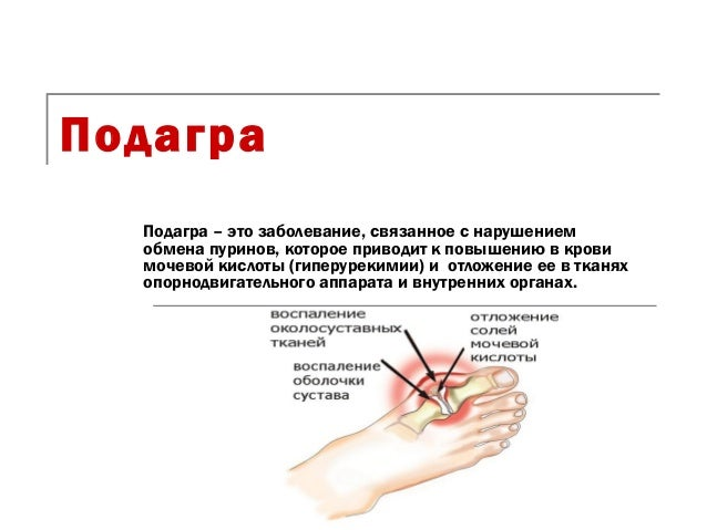 ПодаграПодагра – это заболевание, связанное с нарушениемобмена пуринов, которое приводит к повышению в кровимочевой кислот...