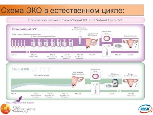 15. Схема ЭКО