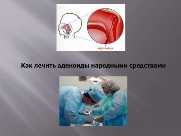 лекарство от паразитов у свиней