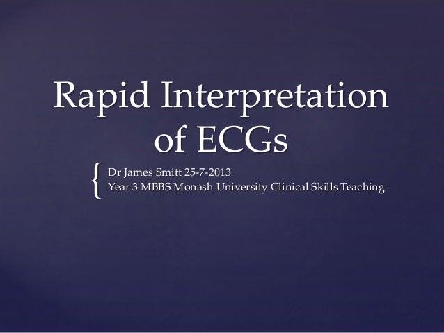 { Rapid Interpretation of ECGs Dr James Smitt 25-7-2013 Year 3 MBBS Monash University Clinical Skills Teaching