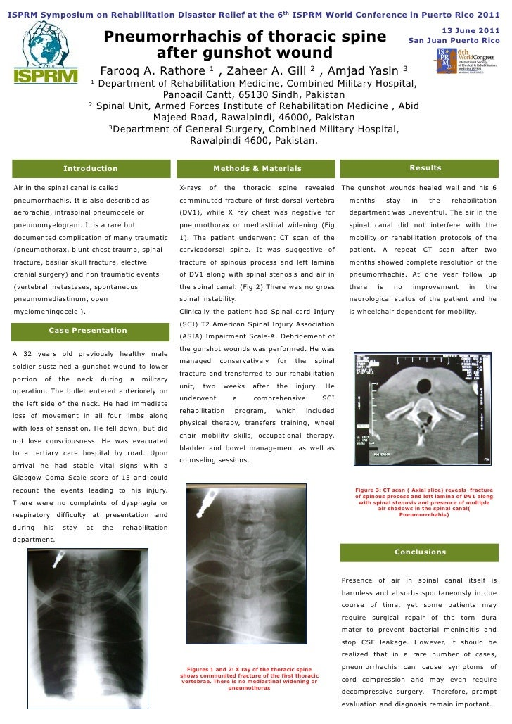 Rathore pneumorrhachis of the thoracic spine after gunshot wound  crdr.disaster.symp.poster.isprm11