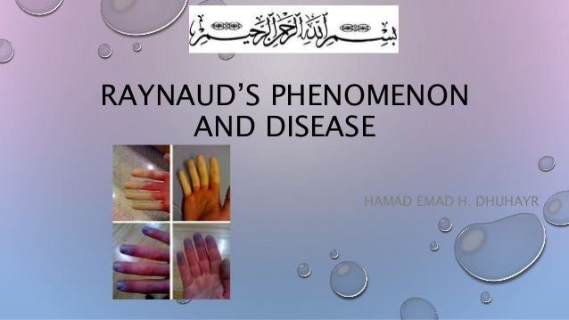 RAYNAUD'S PHENOMENON AND DISEASE HAMAD EMAD H. DHUHAYR