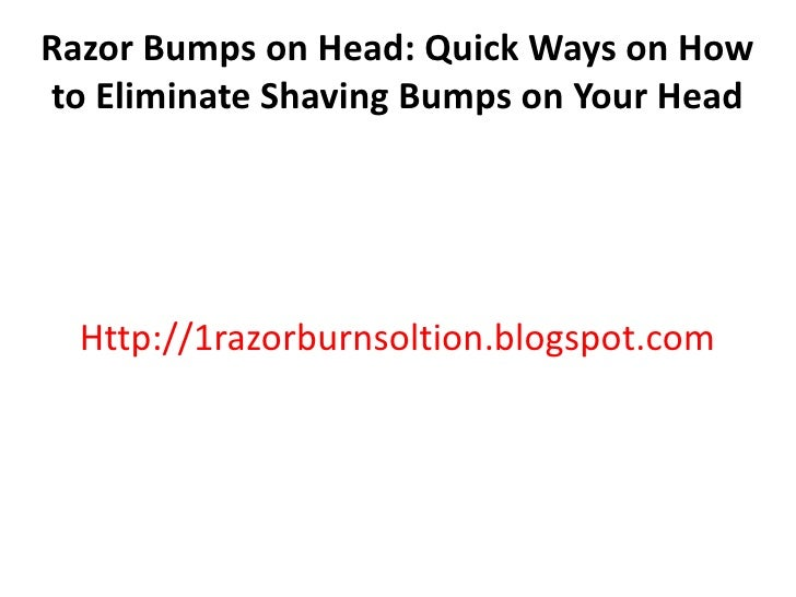 Razor Bumps on Head: Quick Ways on Howto Eliminate Shaving Bumps on Your Head  Http://1razorburnsoltion.blogspot.com