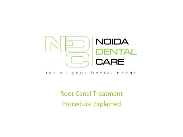 Root Canal Treatment Procedure Explained