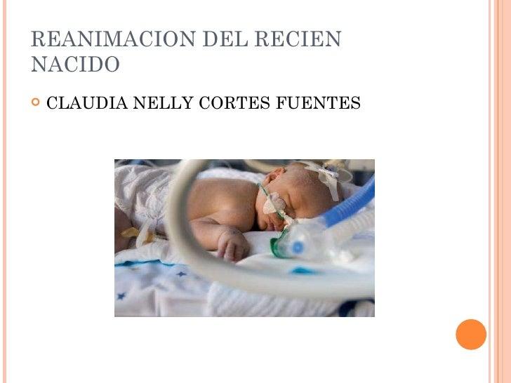 REANIMACION DEL RECIEN NACIDO <ul><li>CLAUDIA NELLY CORTES FUENTES </li></ul>