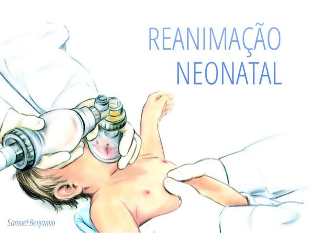 Importância de Reanimação Neonatal • 1 em 10 RN: VPP para respirar • 1 em 100 RN: INTOT/MC • 1 em 1000 RN: INTOT/MC/Drogas...