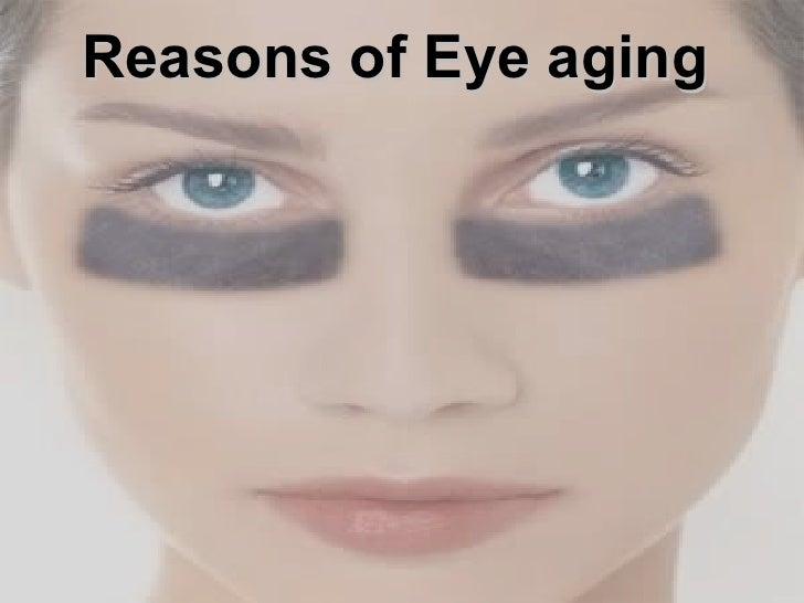 Reasons of Eye aging