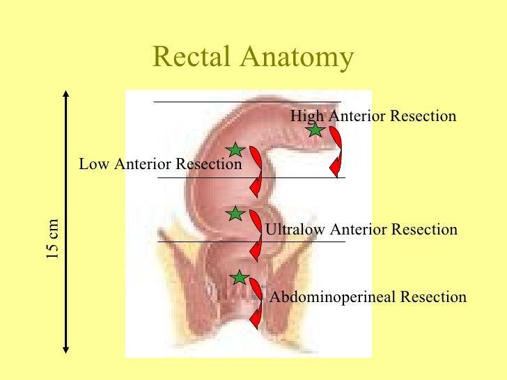 Anterior in anatomy