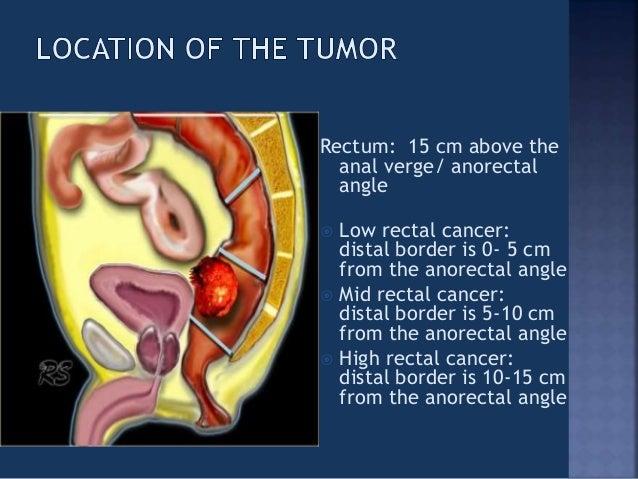 Rectal anal tumors versus
