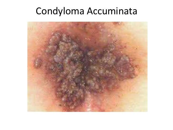 Für Condyloma acumination anus fantasize