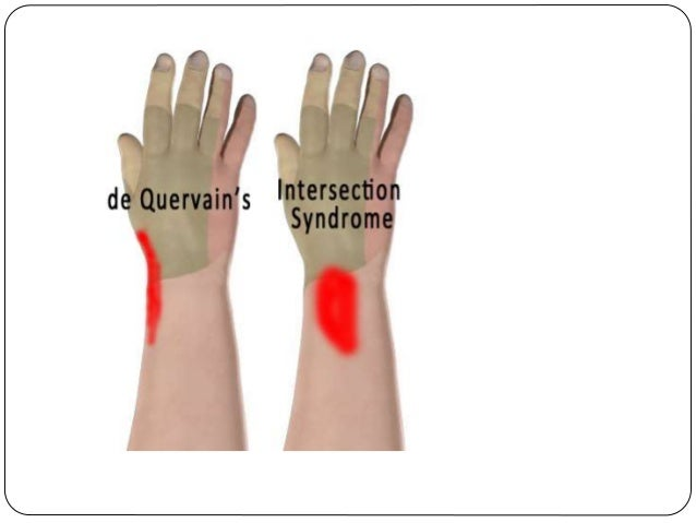 de quervain syndrome steroid injection