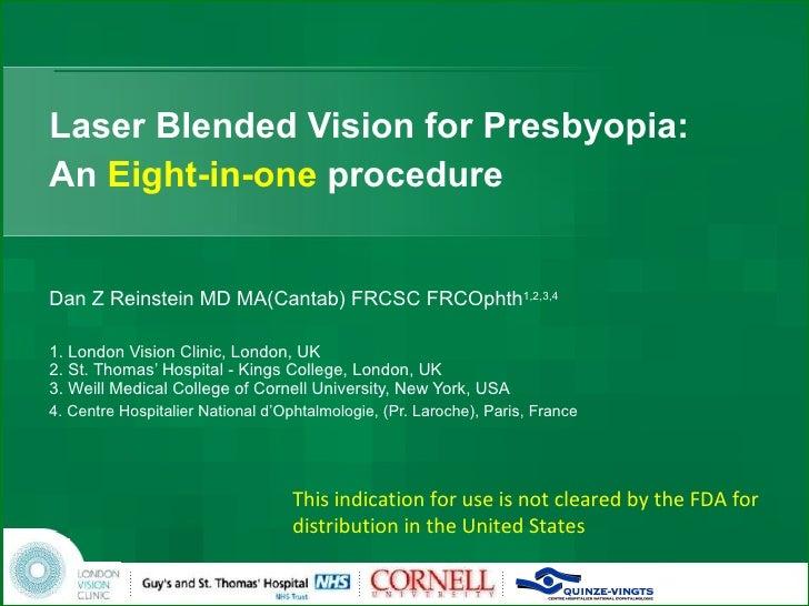 Laser Blended Vision for Presbyopia: